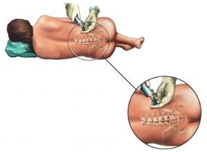 Чем полезны кортикостероиды при псориазе