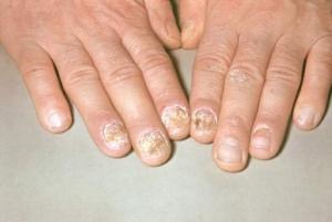 Как проявляется ногтевой псориаз