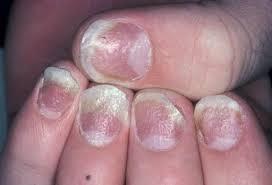 Почему псориаз может развиться на ногтях