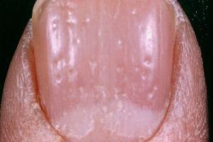 Причины появления псориаза на ногтях