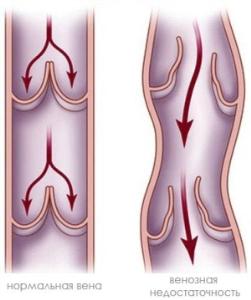 Симптомы венозной экземы