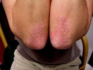 Какой эффект оказывает жар в бане на больную кожу