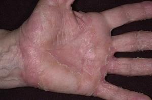 Причины развития экземы на ладонях