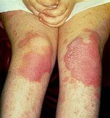 Причины возникновения псориаза на ногах