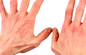 jekzemy-kistej-ruk