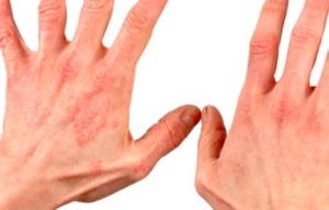 Какие виды экземы на руках бывают