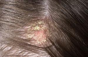 Причины возникновения себореи головы