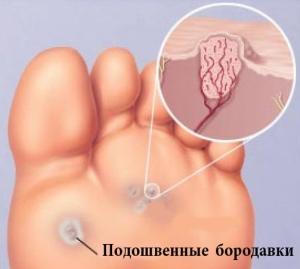 Как подобрать средство от бородавок на ногах