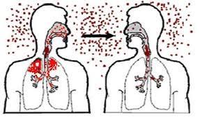 Как можно заразиться герпесом зостер