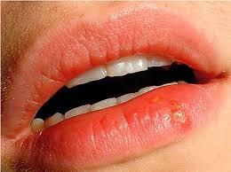Лечебные кремы от герпеса на губе