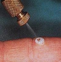 Криотерапия бородавок на лице