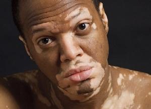 Причины заболевания Витилиго