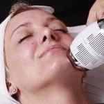 krioterapija-borodavki-na-lice