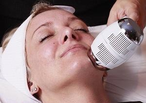 Криотерапия бородавки на лице