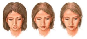 Что собой представляет диффузная алопеция у женщин?
