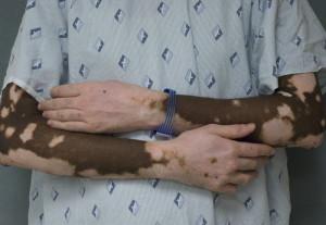 bystroe-lechenie-vitiligo