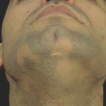 alopecija-u-muzhchin-na-borode