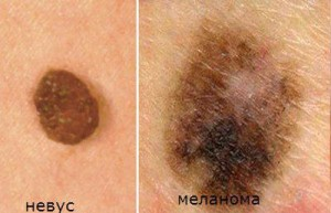 Причины меланомы кожи
