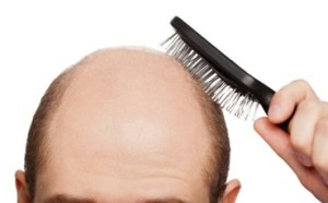 Эффективные методы остановки выпадения волос