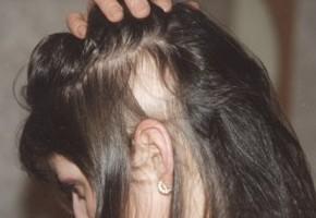 Почему выпадают волосы у подростка