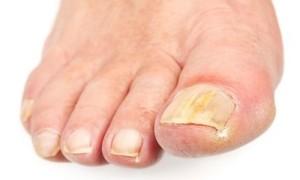 Проявления ногтевого грибка на нижних конечностях