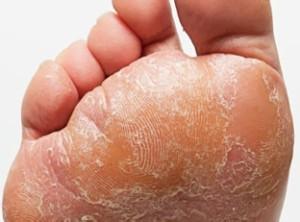 Виды грибка на ногах – классификация и краткая характеристика