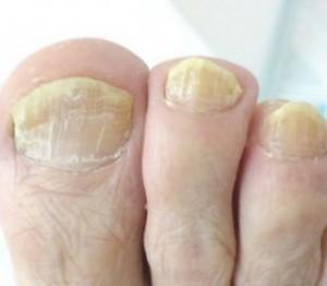 Чем вызывается грибок ногтей на ногах