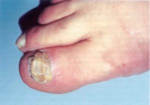 Как проявляется ногтевой грибок на ногах