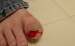 Травмы ногтей на ногах