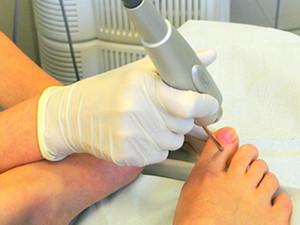 Хирургическое удаление ногтя, инфицированного грибком
