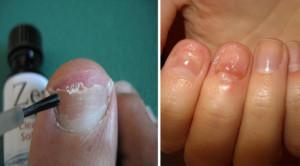 Нанесение противогрибкового препарата на ногтевую пластинку