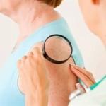 posleoperacionnoe-lechenie-melanomy