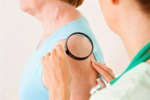 Послеоперационное лечение меланомы