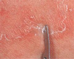 Соскоб на пробу грибка кожи