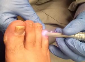 Способы эффективного лечения ногтевого грибка