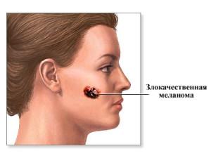 Факторы возникновения меланомы