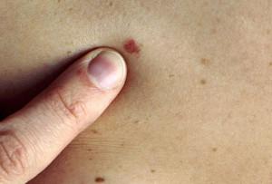 Процесс развития меланомы