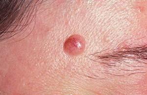 Причины ювенильной меланомы