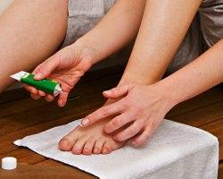 Противогрибковые мази для лечения ног
