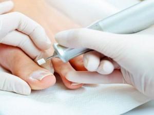 Применение лечебного педикюра при ногтевом грибке
