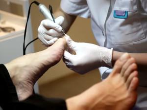 Общие сведения о медицинском педикюре при грибке ногтей