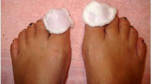 Народные средства для смазывания ногтей от грибка